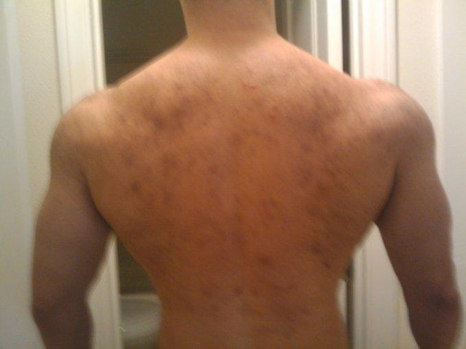 acne steroids